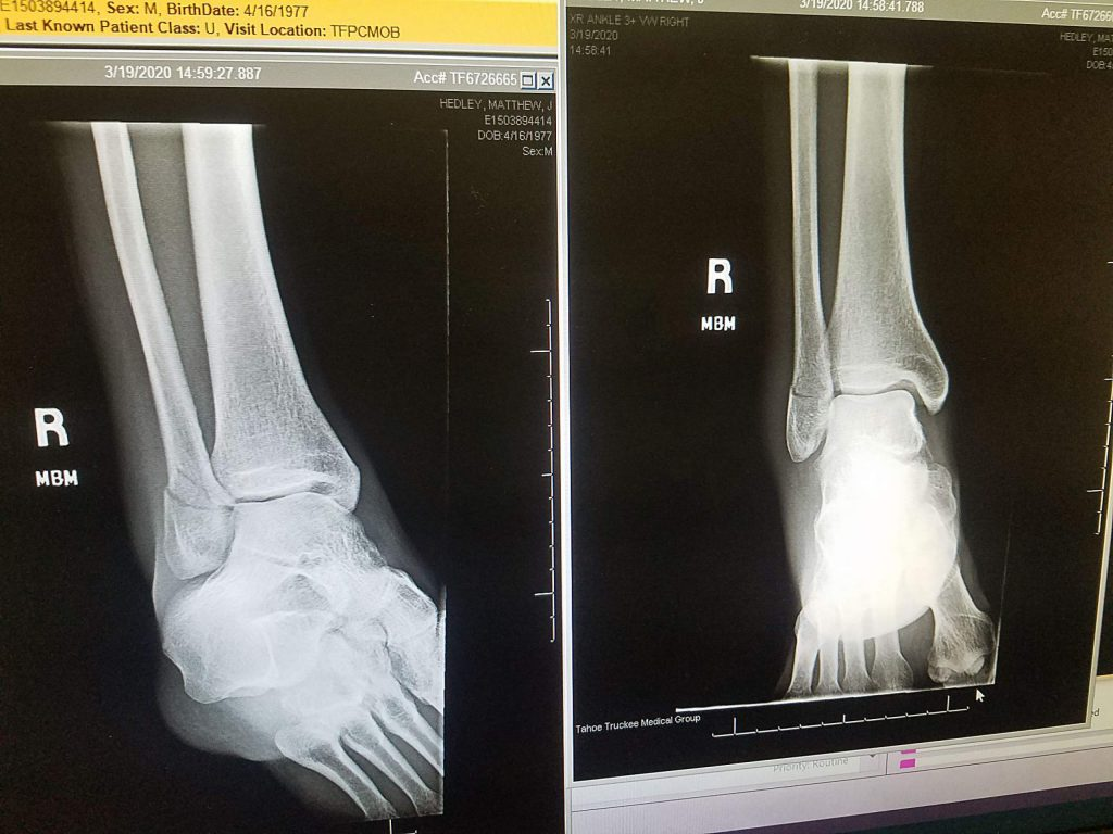 An X-ray image of Matt Hedley's fractured leg is show.